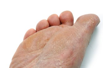 Canton and Ypsilanti Podiatrist | Canton and Ypsilanti Athlete's Foot | MI | Advanced Family Foot & Ankle |