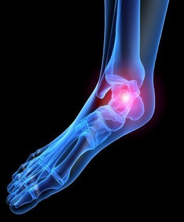 Canton and Ypsilanti Podiatrist | Canton and Ypsilanti Heel Pain/Fasciitis | MI | Advanced Family Foot & Ankle |