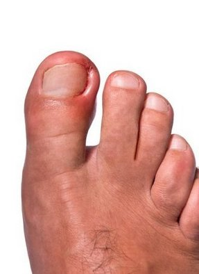 Canton and Ypsilanti Podiatrist | Canton and Ypsilanti Ingrown Toenails | MI | Advanced Family Foot & Ankle |