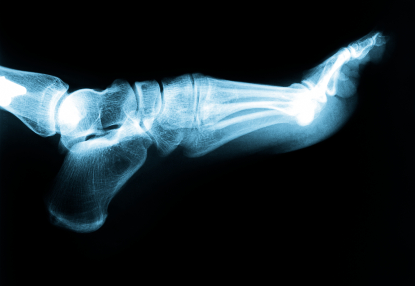 Canton and Ypsilanti Podiatrist | Canton and Ypsilanti Plantar Fasciitis | MI | Advanced Family Foot & Ankle |