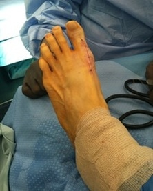 Post-Op Bunion
