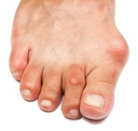 Canton and Ypsilanti Podiatrist | Canton and Ypsilanti Bunions | MI | Advanced Family Foot & Ankle |